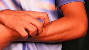 Trastorno de Excoriación – Rascarse la piel
